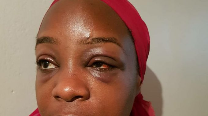 Beaten; Angella Katatumba with a swollen eye
